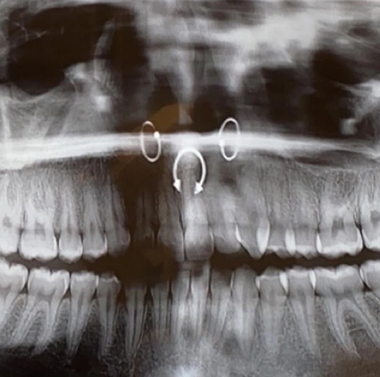 4 More Fascinating Pictures of Body Jewelry in X-Rays