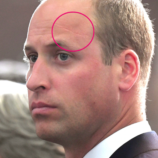 Prince William Has A Legit Harry Potter Scar On His Head And The